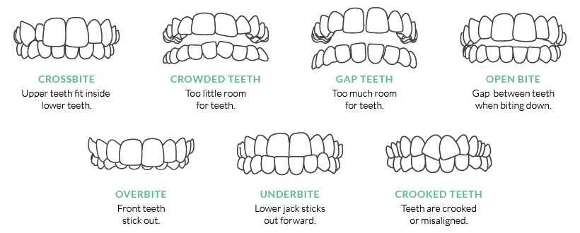 Invisalign Smile Assessment | Kelowna Dentist | Dr. Steve Johnson Dental Group